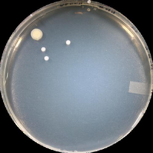 Participant ABCC044 - Genotype CC (Wet)