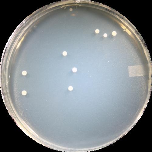 Participant ABCC076 - Genotype CC (Wet)