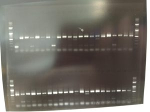 The segments of PCR-amplified DNA show up as bands, whose size can be determined by running a ladder of known sizes on the gel