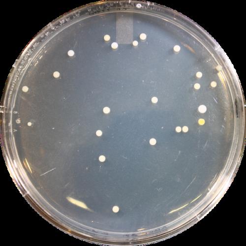 Participant ABCC022 - Genotype CT (Wet)